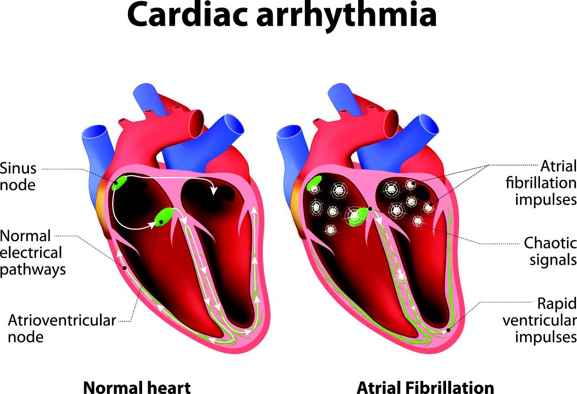 how arrhythmia causes irregular heartbeat infographic