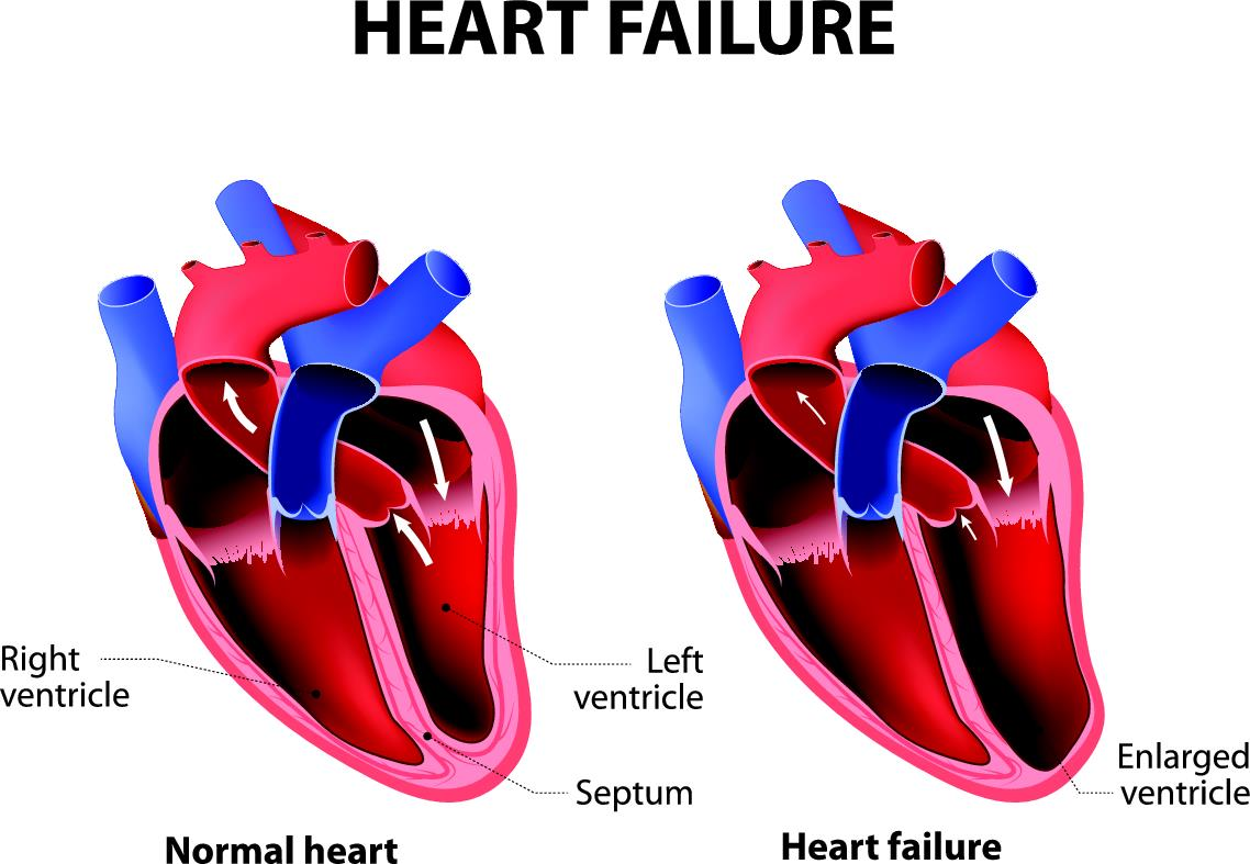 normal heart and heart failure infographic