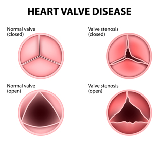 healthy heart valves and diseased heart valves infographic