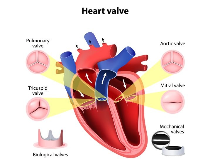 healthy heart valves artificial heart valves infographic