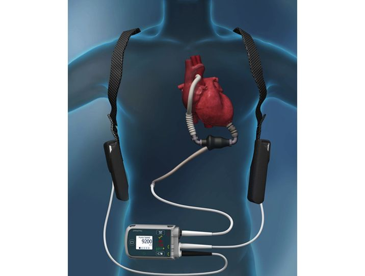 left ventricular assist device pdf
