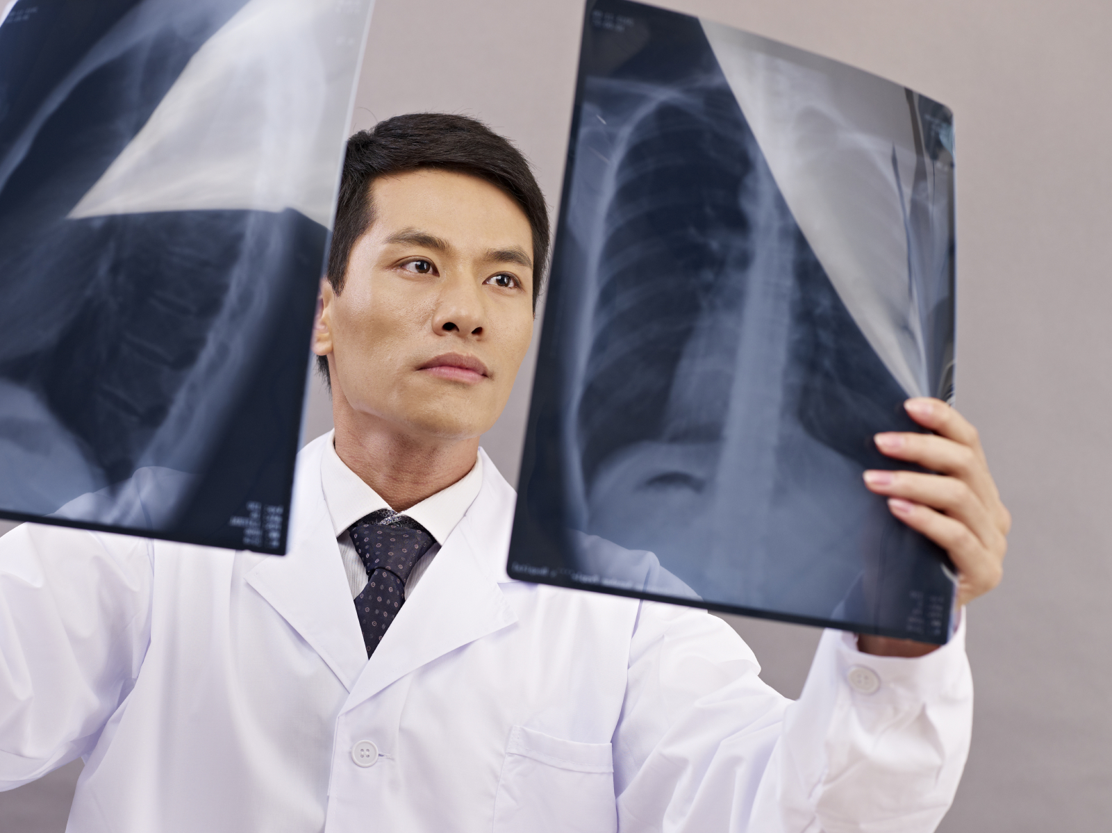 A cancer doctor looking at x-rays looking for signs of cancer