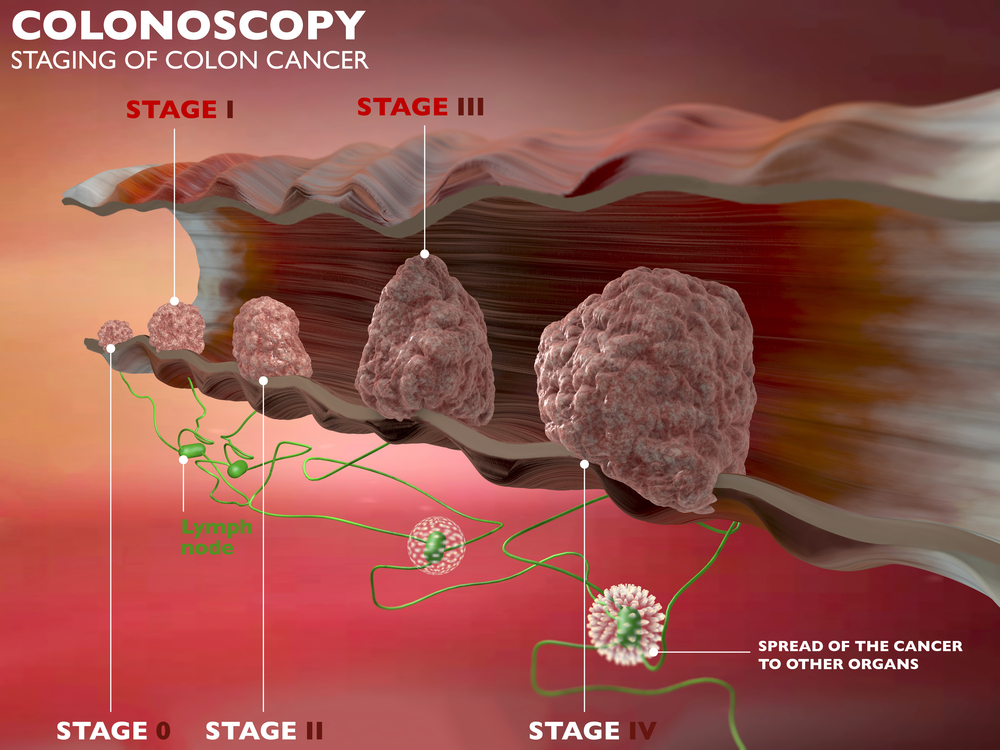 Colon cancer stages infographic