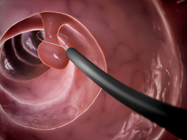 Colonoscopy removing pre-cancerous polyp
