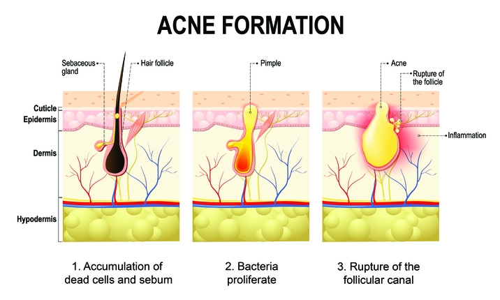 Acne - Formation