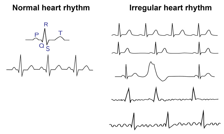 All about Arrhythmias - Arrhythmia