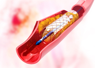Angioplasty & Stents: What You Need to Know