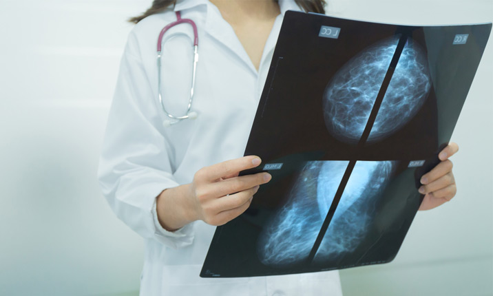 Breast MIS - Treatment for cancer