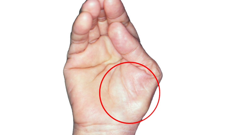 what kind of doctor deals with carpal tunnel syndrome