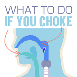 What to Do if You Choke?