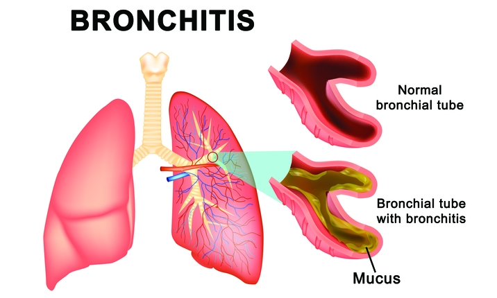 Chronic bronchitis – lung infection