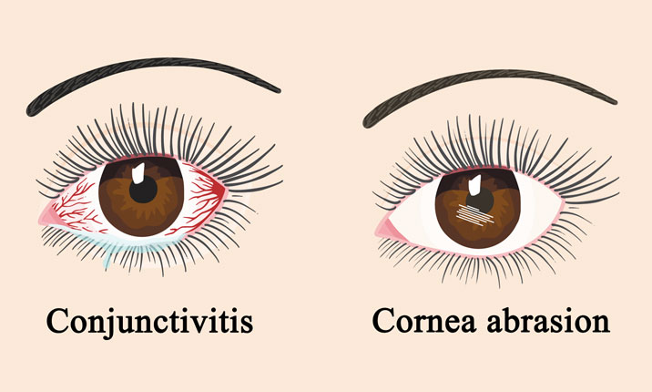 Complications of dry eyes