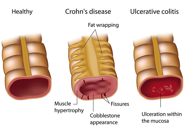 Crohn's disease and ulcerative colitis - digestive problems