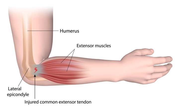 Crossfit and injuries - Tennis elbow