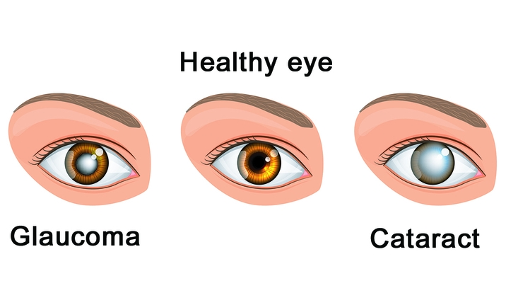 Only elders are at risk of glaucoma or cataracts