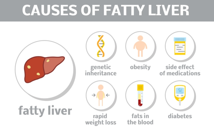 Picture of the causes of a fatty liver