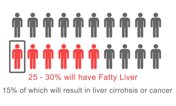 Myth fatty liver is rare