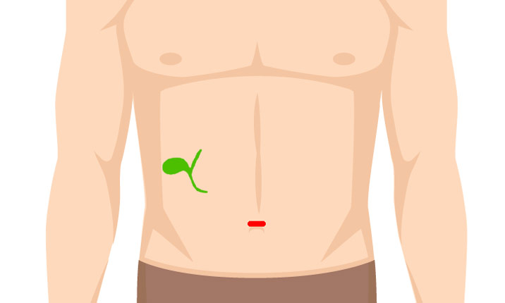 No-scar gall bladder removal surgery