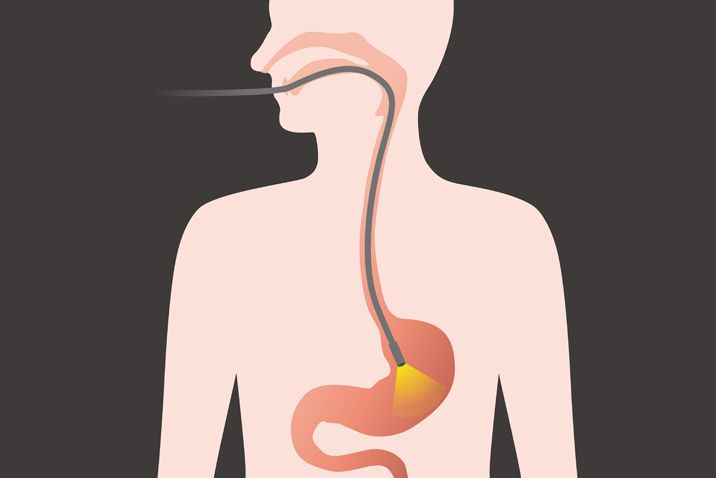 A gastroscopy can examine the oesophagus, stomach, duodenum and small intestine