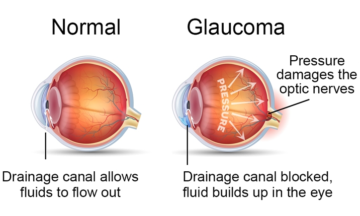 Glaucoma due to fluid build-up
