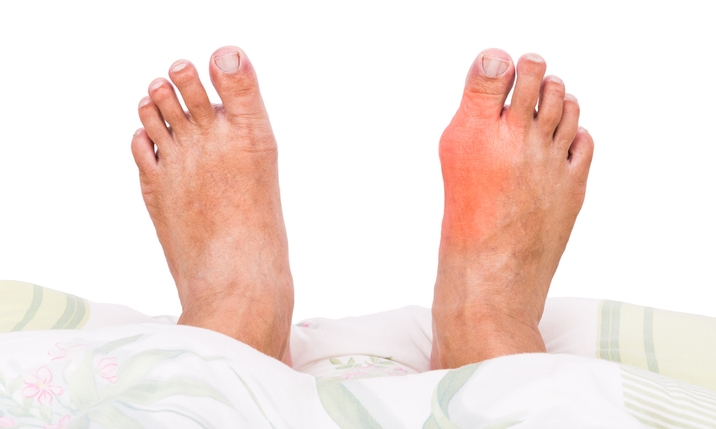 How To Stop A Gout Attack