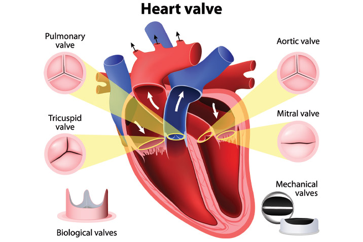Heart valve repair / replacement