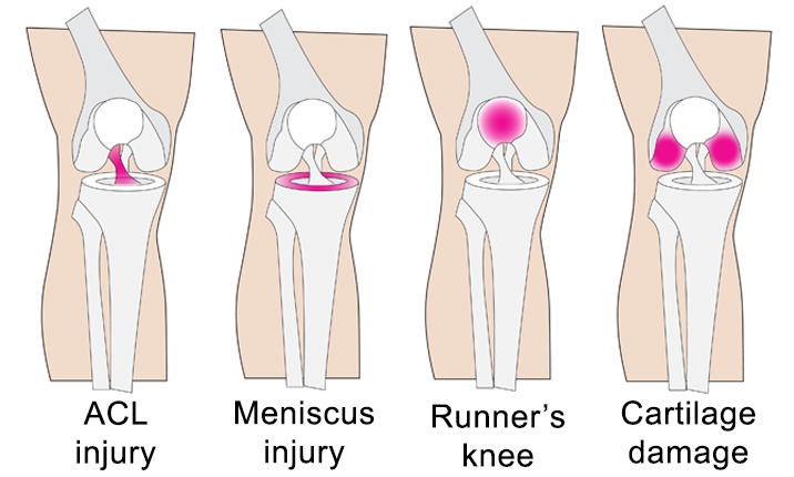 Injuries treated with knee preservation arthroscopy