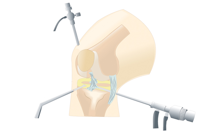 What is knee preservation arthroscopy?