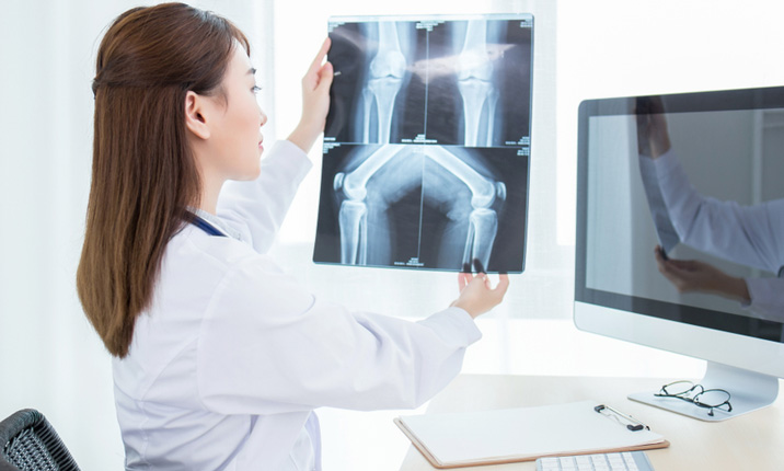 Knee replacement surgery - Before and after surgery