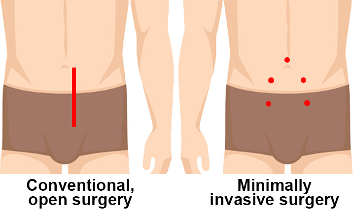What Is Minimally Invasive Prostatectomy Health Plus
