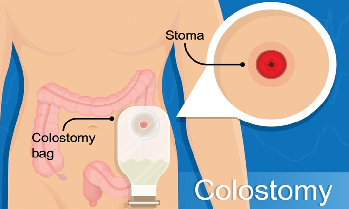 What is a stoma?
