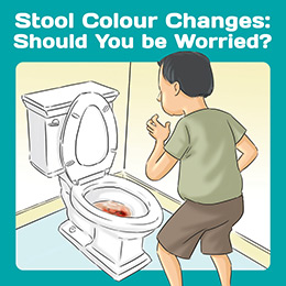 Stool colour changes
