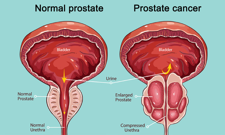 Surgery for prostate cancer - Prostate cancer