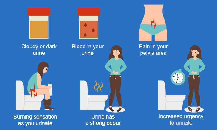 Female UTIs – Your Burning Questions Answered | Health Plus